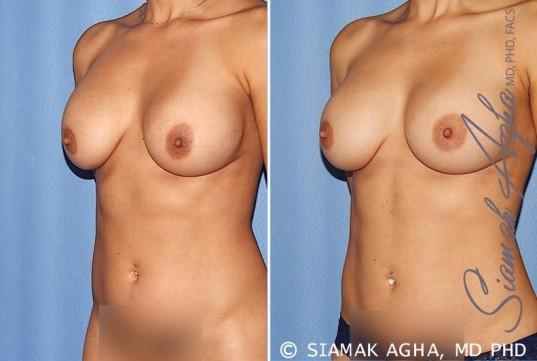orange-county-breast-augmentation-revision-patient-12-front-left