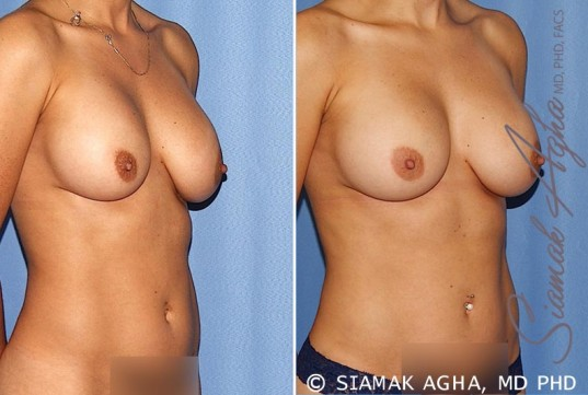 orange-county-breast-augmentation-revision-patient-12-front-right