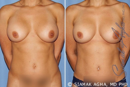 orange-county-breast-augmentation-revision-patient-12-front