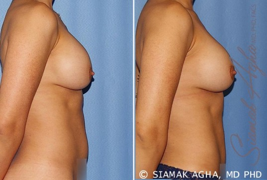 orange-county-breast-augmentation-revision-patient-12-right