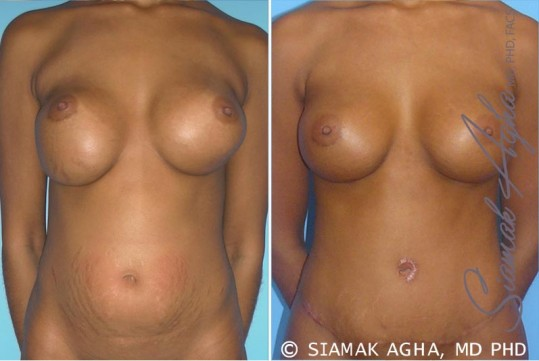 orange-county-breast-augmentation-revision-patient-3-front