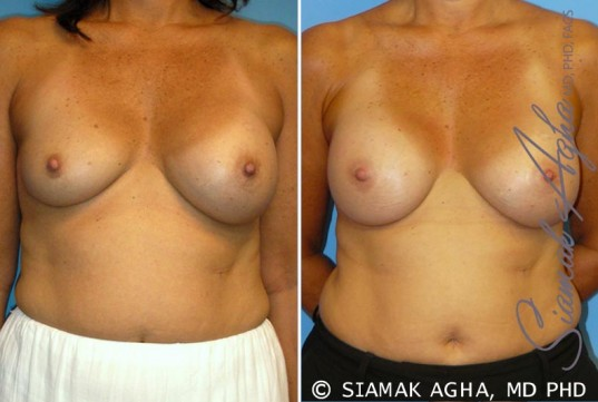 orange-county-breast-augmentation-revision-patient-7-front