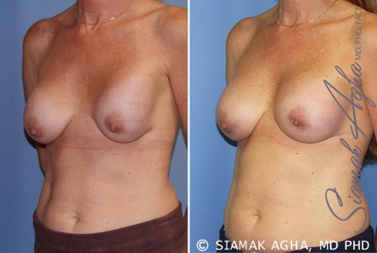 orange-county-breast-augmentation-revision-patient-8-front-left