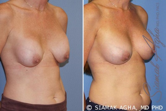 orange-county-breast-augmentation-revision-patient-8-front-right
