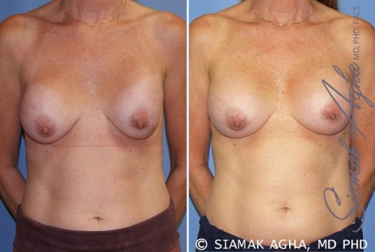 orange-county-breast-augmentation-revision-patient-8-front