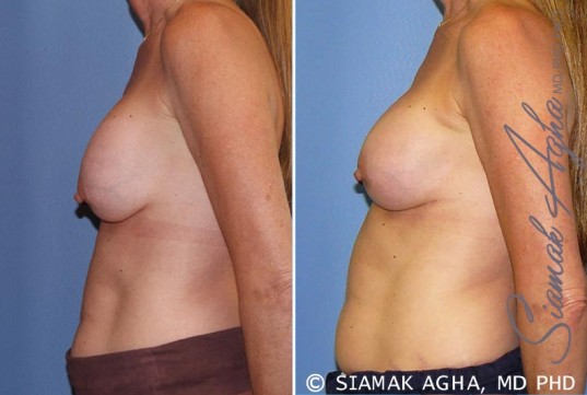 orange-county-breast-augmentation-revision-patient-8-left