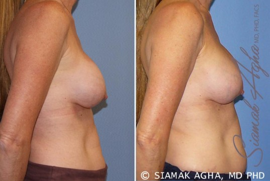 orange-county-breast-augmentation-revision-patient-8-right