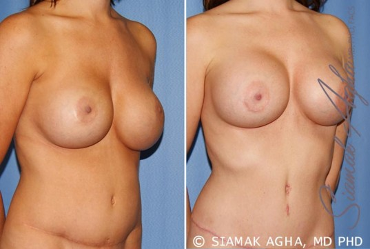 orange-county-breast-augmentation-revision-patient-9-front-right
