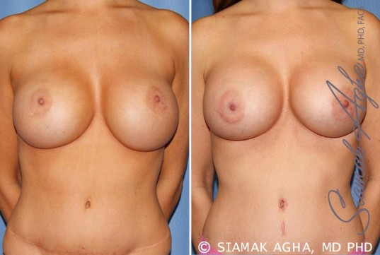 orange-county-breast-augmentation-revision-patient-9-front