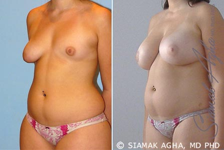 orange-county-breast-fat-transfer-patient-1-front-left
