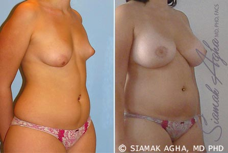 orange-county-breast-fat-transfer-patient-1-front-right