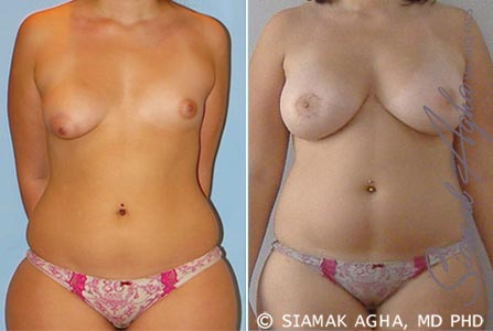 orange-county-breast-fat-transfer-patient-1-front