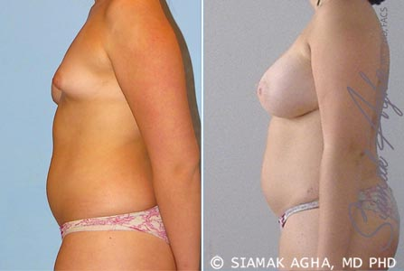 orange-county-breast-fat-transfer-patient-1-left