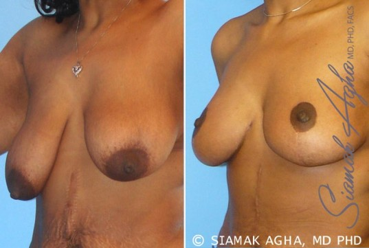 orange-county-breast-lift-patient-1-front-left