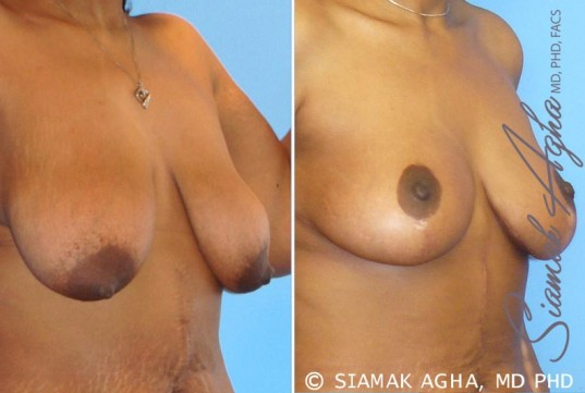 orange-county-breast-lift-patient-1-front-right