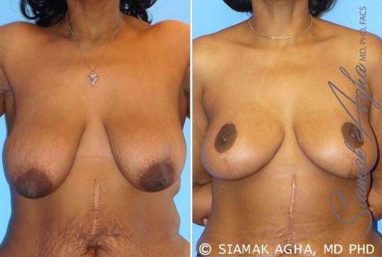 orange-county-breast-lift-patient-1-front