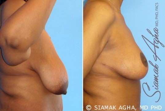 orange-county-breast-lift-patient-1-right