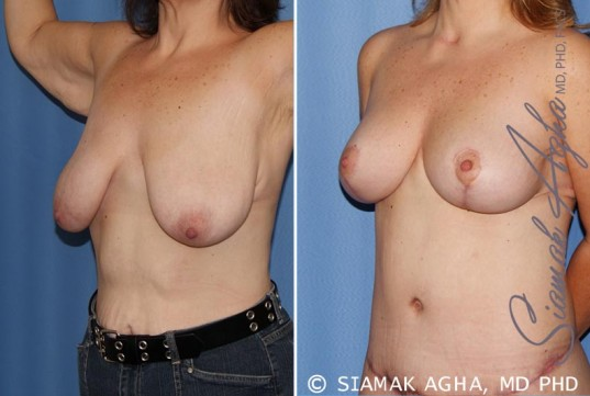 orange-county-breast-lift-patient-4-front-left