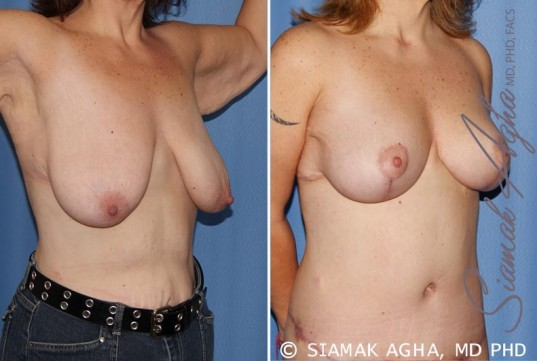 orange-county-breast-lift-patient-4-front-right