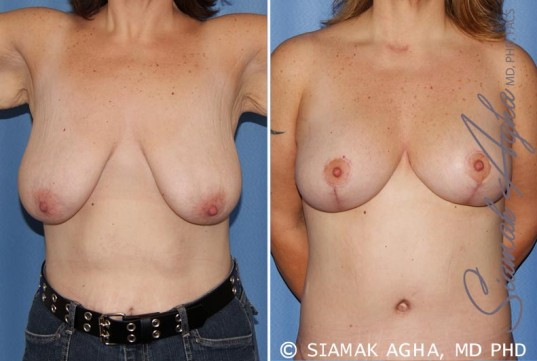 orange-county-breast-lift-patient-4-front