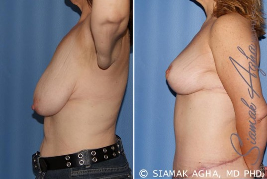 orange-county-breast-lift-patient-4-left