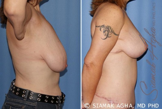 orange-county-breast-lift-patient-4-right