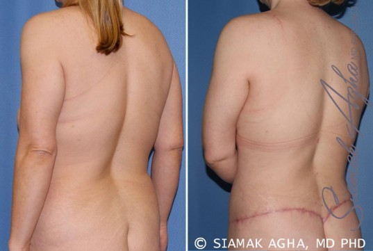 orange-county-breast-lift-patient-5-back-left
