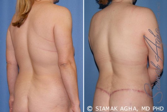 orange-county-breast-lift-patient-5-back-right