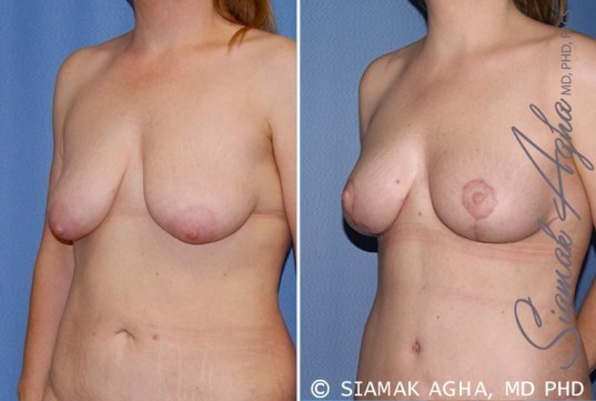 orange-county-breast-lift-patient-5-front-left