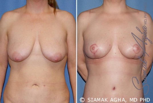 orange-county-breast-lift-patient-5-front