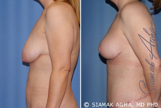 orange-county-breast-lift-patient-5-left