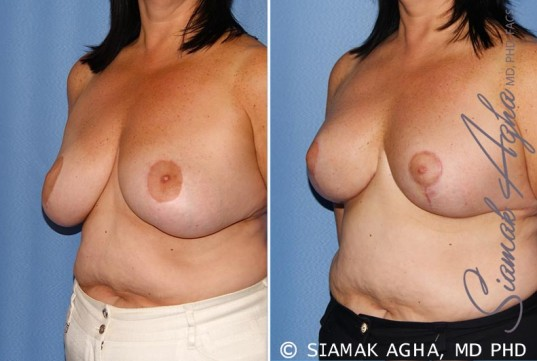 orange-county-breast-lift-patient-6-front-left