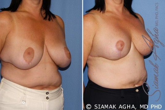 orange-county-breast-lift-patient-6-front-right