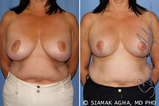 orange-county-breast-lift-patient-6-front