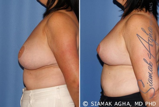 orange-county-breast-lift-patient-6-left