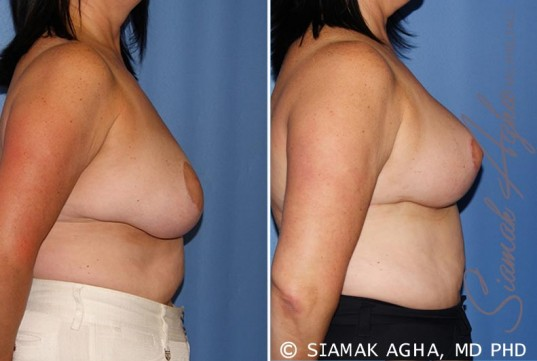 orange-county-breast-lift-patient-6-right