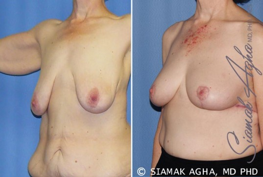 orange-county-breast-lift-patient-7-front-left