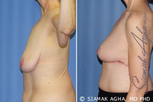 orange-county-breast-lift-patient-7-left