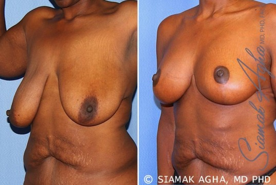 orange-county-breast-lift-patient-8-front-left