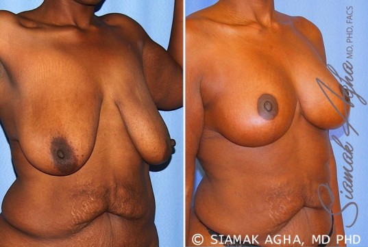 orange-county-breast-lift-patient-8-front-right