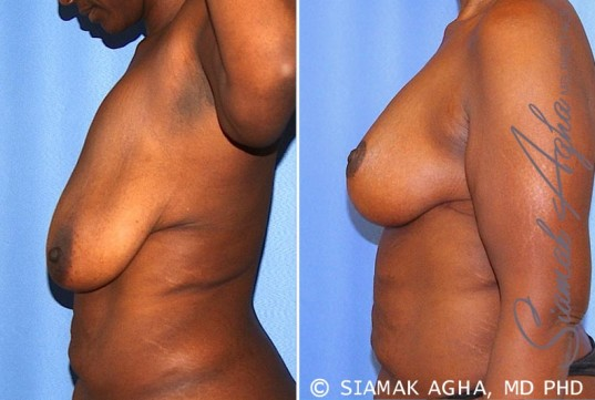 orange-county-breast-lift-patient-8-left