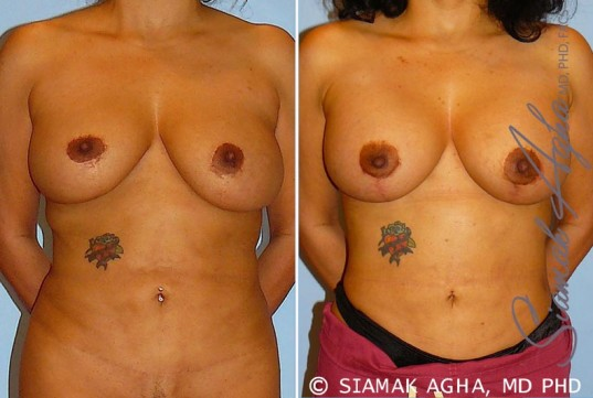 orange-county-breast-lift-with-augmentation-patient-10-front