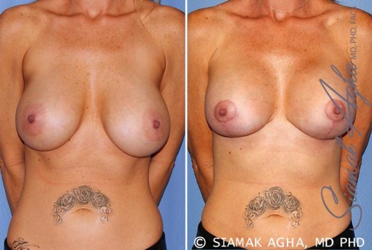orange-county-breast-lift-with-augmentation-patient-11-front