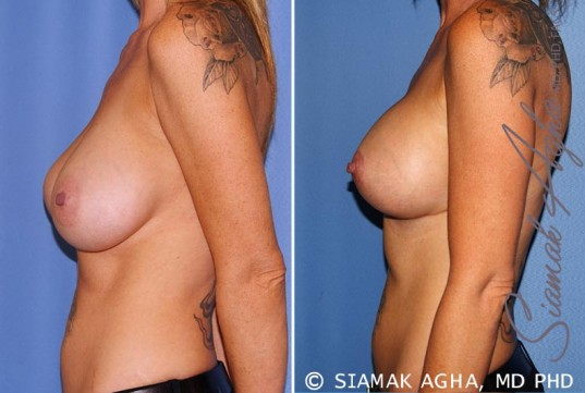orange-county-breast-lift-with-augmentation-patient-11-left