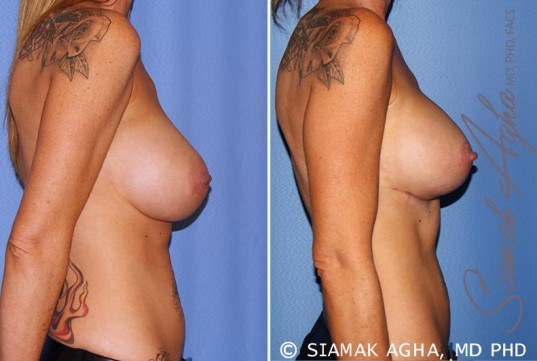 orange-county-breast-lift-with-augmentation-patient-11-right