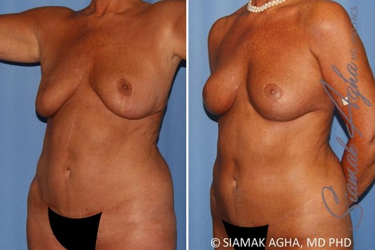 orange-county-breast-lift-with-augmentation-patient-12-front-left