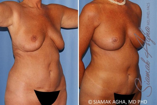 orange-county-breast-lift-with-augmentation-patient-12-front-right