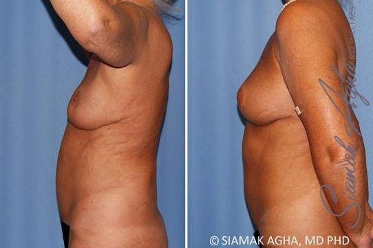 orange-county-breast-lift-with-augmentation-patient-12-left