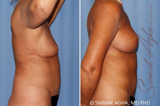 orange-county-breast-lift-with-augmentation-patient-12-right