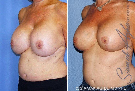 orange-county-breast-lift-with-augmentation-patient-13-front-left